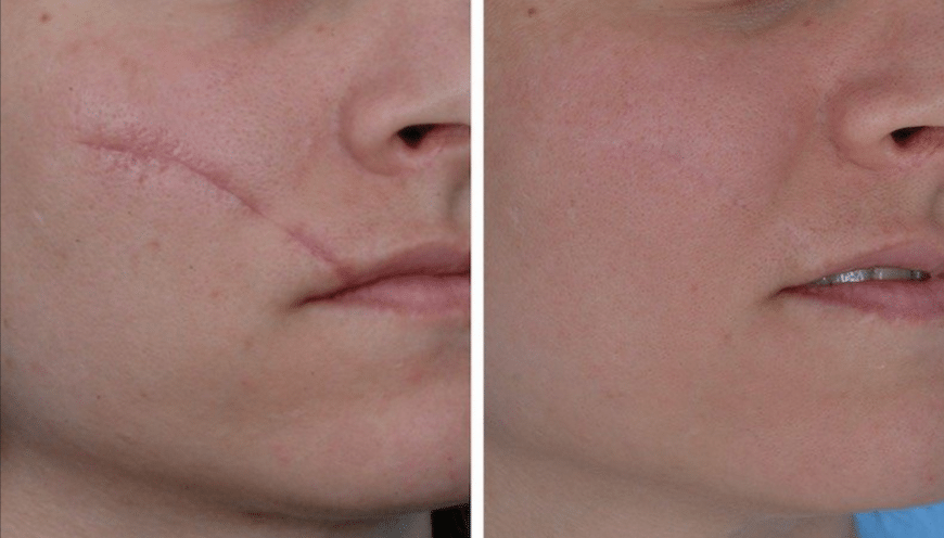Scar-Removal-Treatment-Market