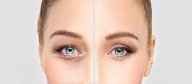 eyelid-surger