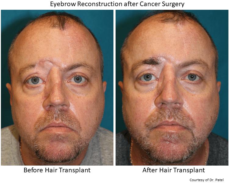 JW_brow-transplant